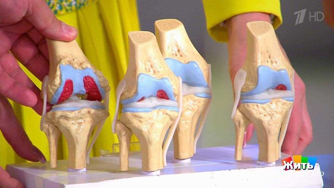 Здорого жить малышева заболивание суставов можно ли греть коленный сустав при гонартрозе