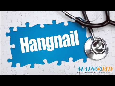 Hangnail ¦ Treatment and Symptoms