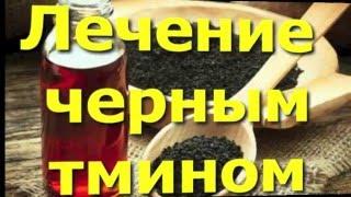 Лечение черным тмином ( аденома, простатит, воспаление) Медицина Пророка.