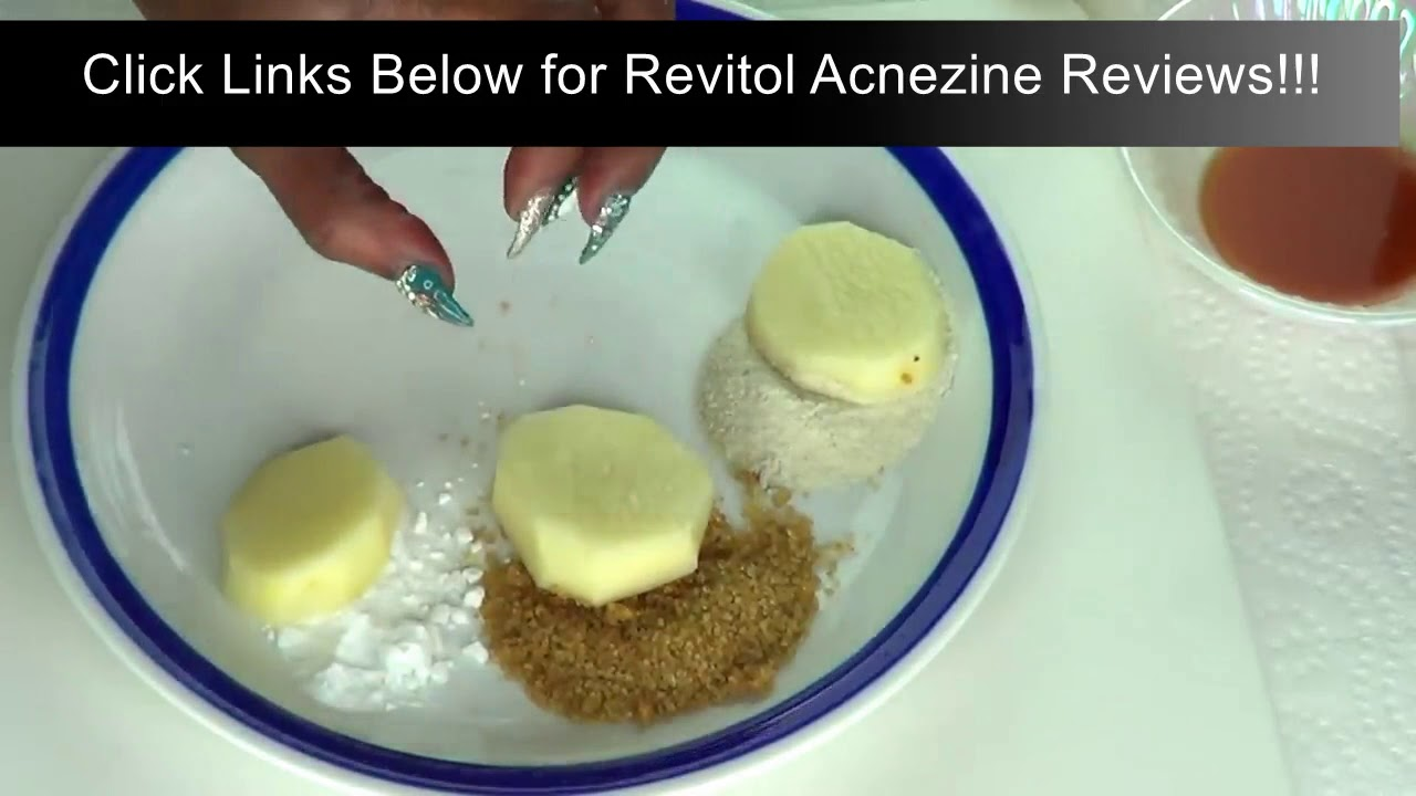Acne Scar Treatment Cream Buy Online Revitol Acnezine Reviews