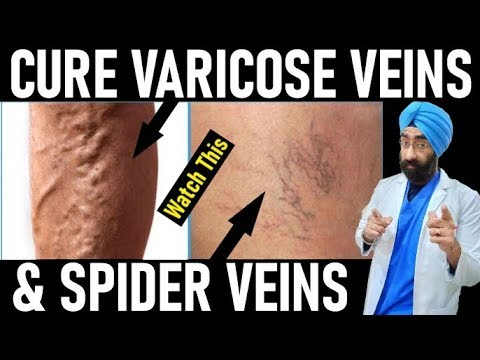 varicose-veins-vs-spider-veins-|-everything-you-need-to-know-|-dr.education-(hindi-+-eng)