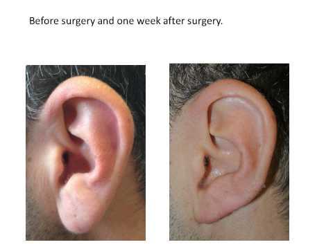 Earlobe Reduction Surgery