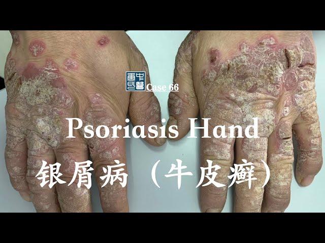 hyperkeratotic psoriasis plaque 过度角化银屑病