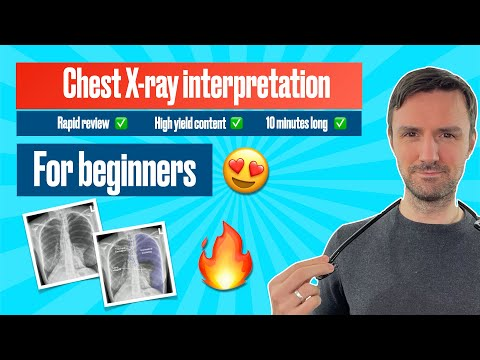 Medical Student Apps: Chest X-ray Interpretation (for beginners)