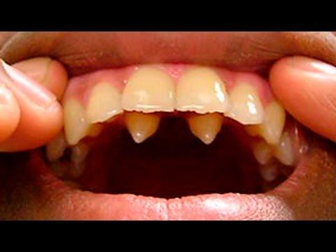 Какие препараты помогут после удаления зуба
