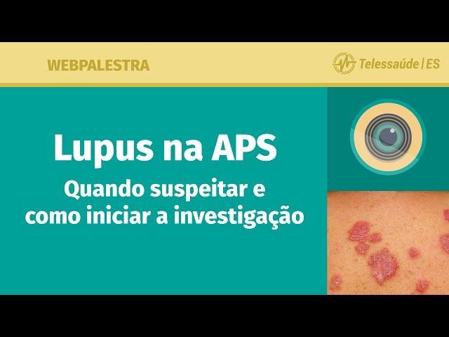 WebPalestra: Lúpus na APS – quando suspeitar e como iniciar a investigação