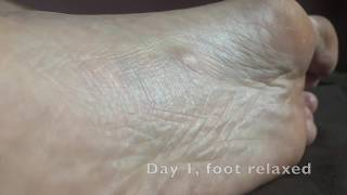 Healing a Tumor 2 (Plantar Fibroma): Results after 17 days