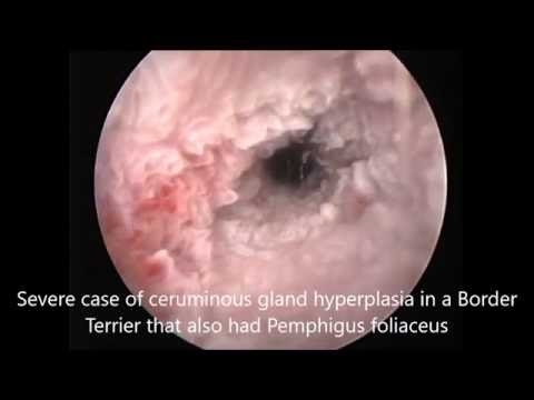 Severe Ceruminous Gland Hyperplasia Youtube