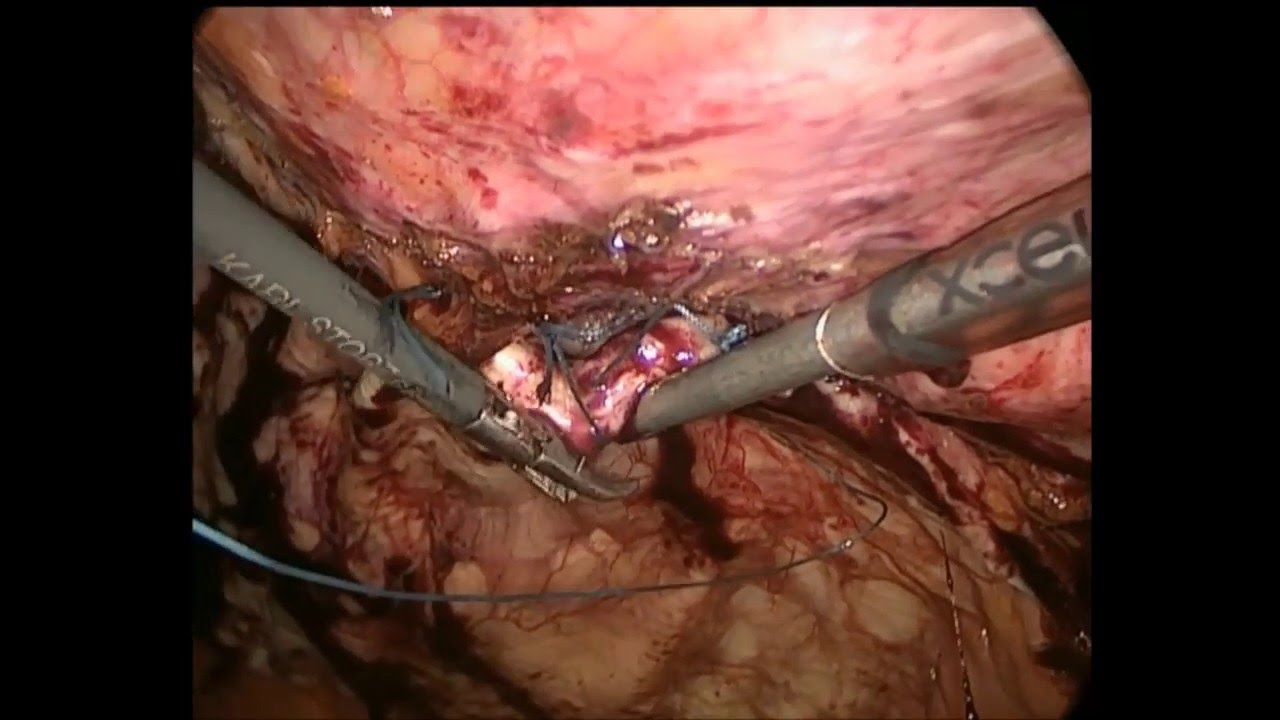 what to do after hernia surgery