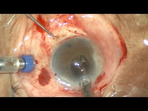 Intrascleral tunnel fixation of an IOL in a vitrectomized eye (İntraskleral GİL fiksasyonu)