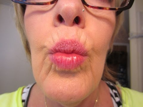 My 1st Botox ~ Smoker\'s Lines Around My Mouth ~ March 26, 2013