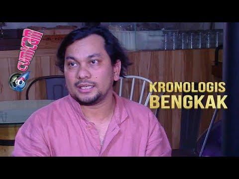 Tompi Jelaskan Efek Bengkak Wajah Ratna Sarumpaet Pasca Sedot Lemak - Cumicam 04 Oktober 2018