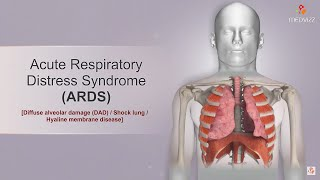 Acute Respiratory Distress Syndrome   Ards   Etiology, Clinical Features, Diagnosis, And Treatment