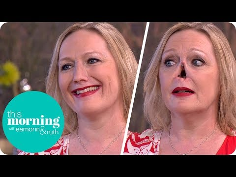 I Lost My Nose to an Autoimmune Disease and Now My New One Is Held on With Magnets | This Morning