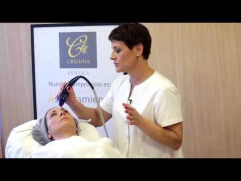 Cristinaclay: Radiofrecuencia facial