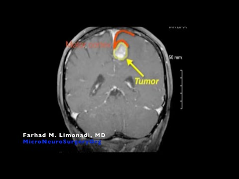 Surgery Metastatic Lung Cancer to Brain