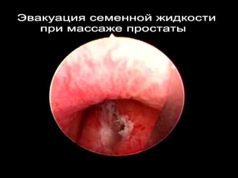 Азооспермия вызвана кистой предстательной железы.