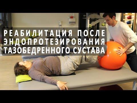 Как проходит реабилитация после замены тазобедренного сустава
