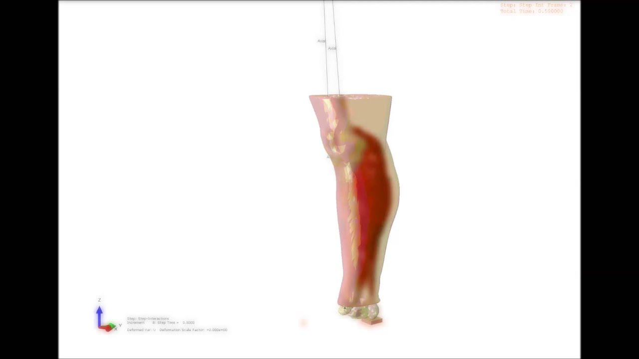 Soleus Gastrocnemius Muscle Contraction Driven Finite Element