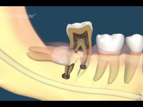 Зуб мудрости растет в сторону щеки рекомендации по снятию