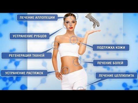 Инъекционная карбокситерапия - газовые уколы в Краснодаре