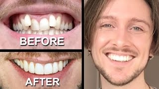 INVISALIGN REVIEW - everything you need to know