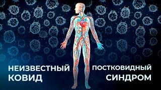 Постковидный синдром   Неизвестный ковид. Фильм 1