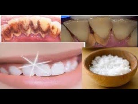 Wow Inilah 10 Cara Memutihkan Gigi Secara Alami Yang Bakalan