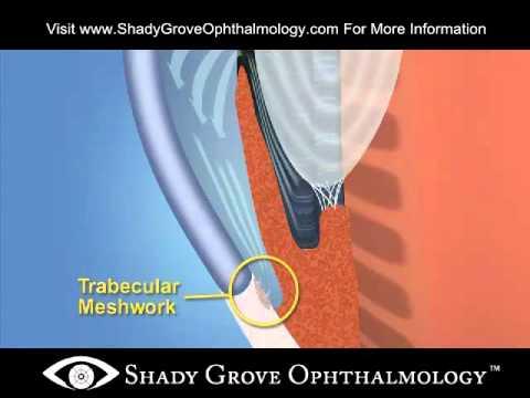 Glaucoma Angle Closure - Shady Grove Ophthalmology