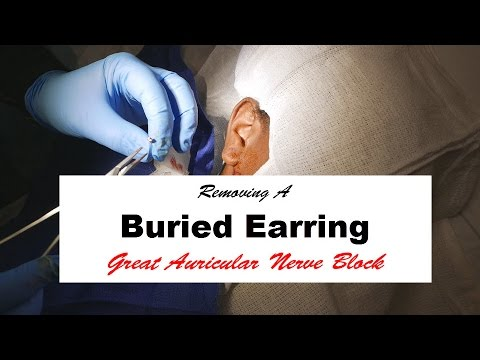 Removing a Buried Earring