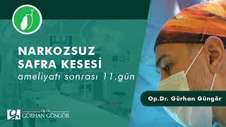Narkozsuz kapali kese ve lazer hemoroid ameliyatini ayni olan hastamiz .post op. 11.gun👍🏼