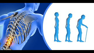How to take care of your bones as you age?   Prevent Osteoporosis   Noble Heart Hospital