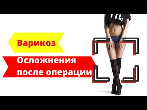 Лечение варикоза - осложнения после операции (реальные истории)   операция   варикоза   лечение   варикоз   отзывы   ногах   нижн   вены   вен   на