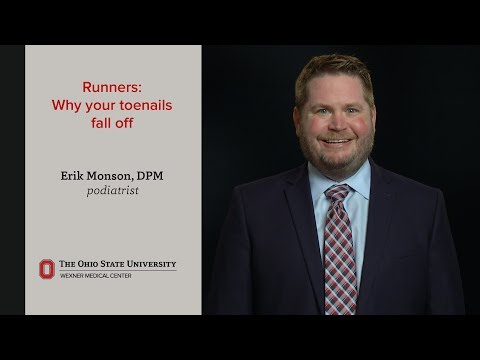 Runners: Why your toenails fall off | Ohio State Medical Center