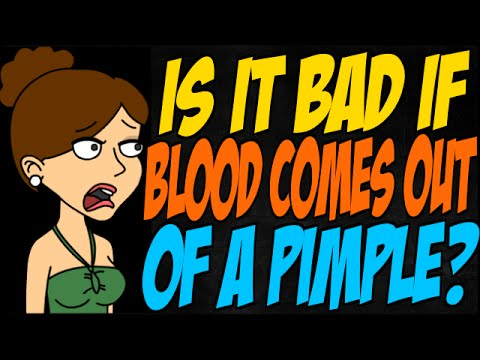 Is it Bad if Blood Comes Out of a Pimple?