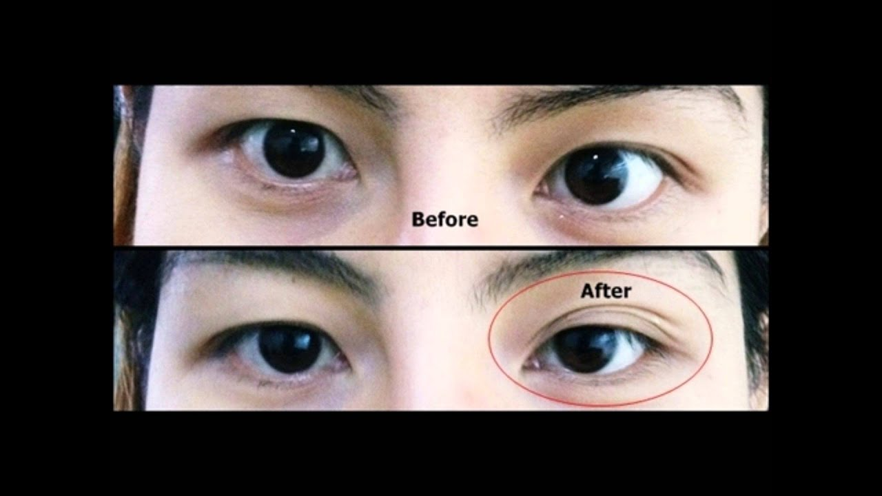 Eyelid Tape Before After Makeup Saubhaya