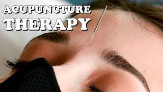 Relaxing Acupuncture Treatment To Relieve Stress