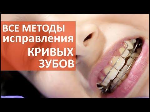 Кривые зубы что делать. 😁 Как сделать выбор метода исправления кривых зубов. Мать и Дитя Кунцево.