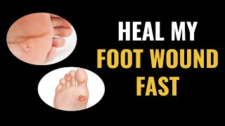 Heal My Foot Wound Fast - Introduction