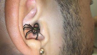 SPIDER IN EAR BITE