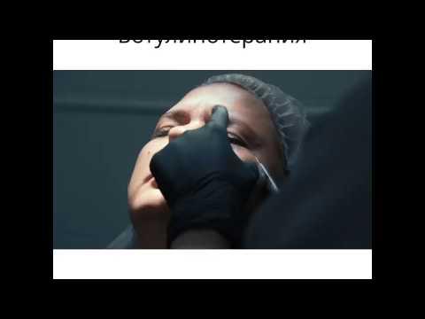 Волшебные уколы омолаживают лицо, стирают мимические морщины. Ботулинотерапия