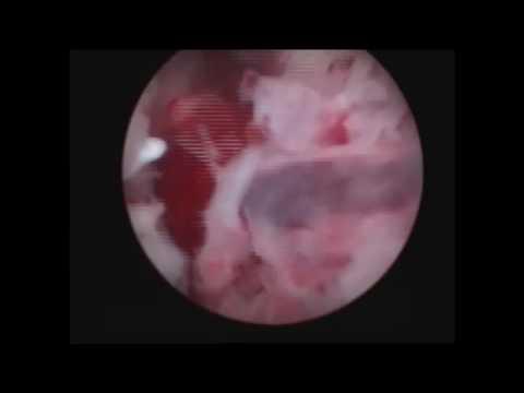 Причины кровотечения из половых органов (маточного