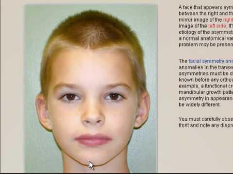 Facial Symmetry Analysis 26