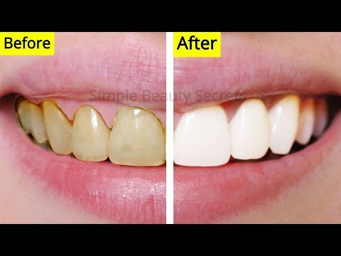 How To Whiten Your Teeth Naturally At Home - Remove Plaque & Stains, Teeth Whitening At Home