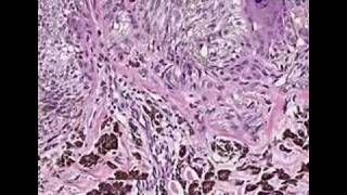 Histopathology Skin Pigmented Spindle Cell Nevus