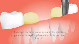 ¿Qué es un puente dental?