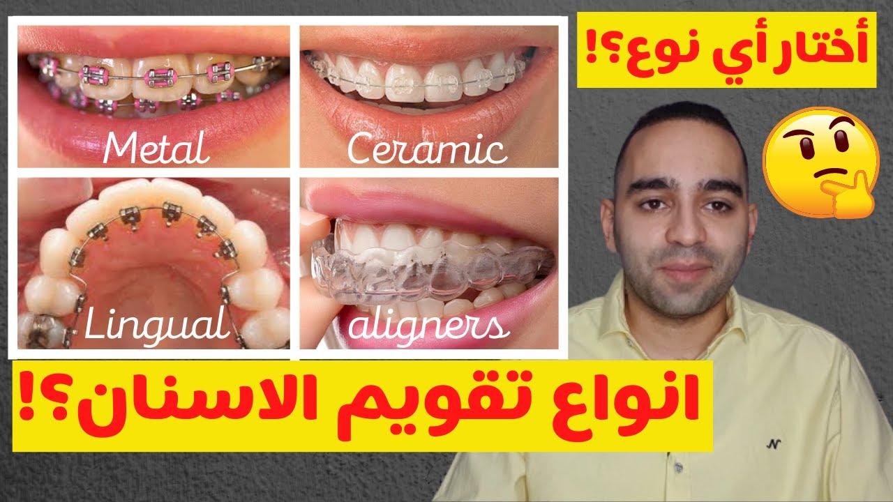 ما هي اضرار تقويم الاسنان موقع مصادر