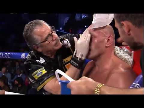 Deontay Wilder Vs Tyson Fury 2 Full Fight - English - Las Vegas Events - KO - Sports