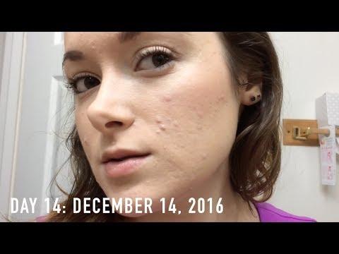 ACCUTANE: MONTH 1   Daily Skin Vlog