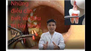 Điều trị tủy răng 16 | Sâu Răng đến tủy